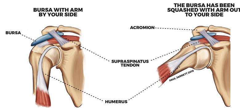 Diagram displaying Bursitis Aggravated By Raising Your Upper Limb