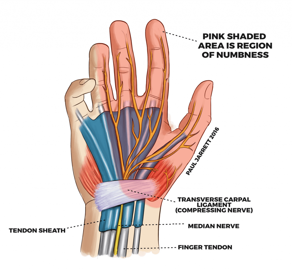 Carpal Tunnel Dr Paul Jarrett Hand Wrist Shoulder Surgeon Perth